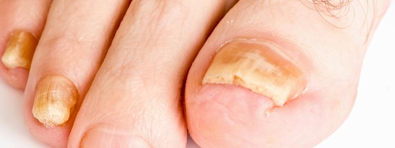 mycose des ongles avis et conseils